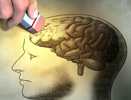 Alzheimer, causas y síntomas