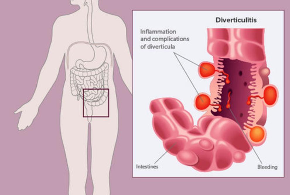Diverticulitis: síntomas y tratamientos